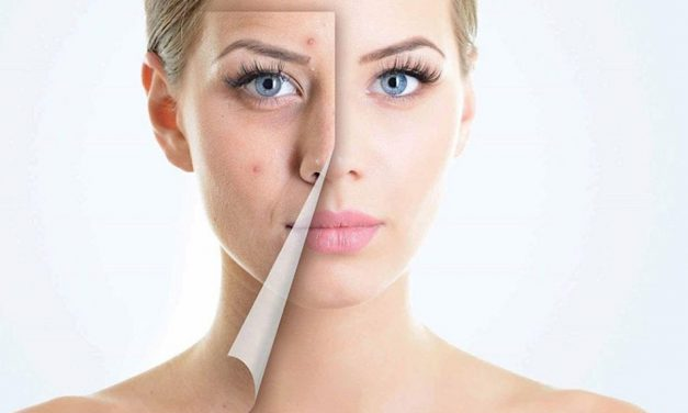 How to get rid of acne scars fast – 11 best ways to do