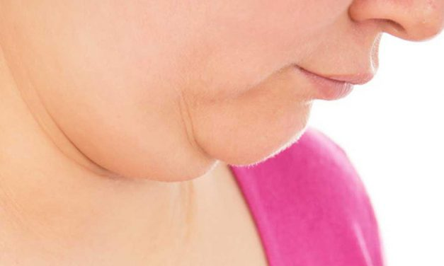 How to get rid of a double chin – home remedies and exercises for double chin